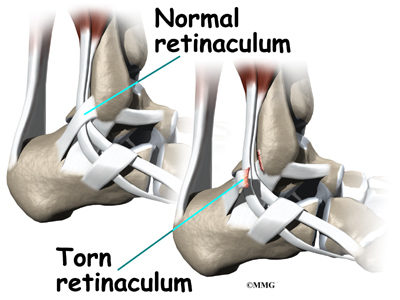 Illustration of The Ankle Cannot Move After Tendon Surgery?