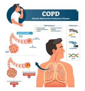 Illustration of Chronic Cough And Shortness Of Breath?