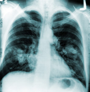 Illustration of The Way To Prevent Smoking Is Not Detected On X-rays?