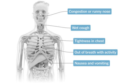 Illustration of Fever, Nausea, Stomach Pain, Lower Chest Pain And Dizziness For 3 Days?
