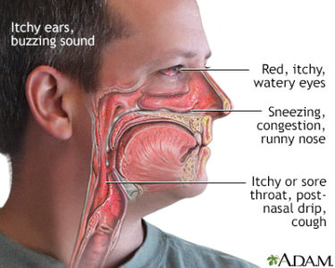Illustration of Coughing Up Mucus And Itching In The Throat?