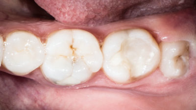 Illustration of Pain That Doesn't Go Away After Pulling A Tooth?