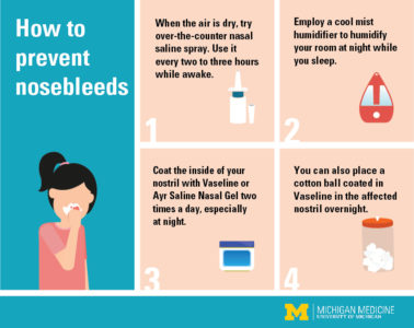 Illustration of How To Deal With Frequent Nosebleeds When Cold?