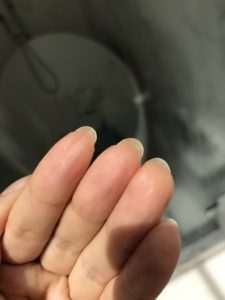 Illustration of Nail Growth That Protrudes Into A Wound?