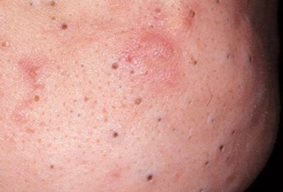 Illustration of Causes Of Black Spots Such As Blackheads In The Groin Area?