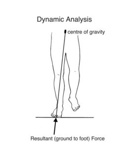 Illustration of The Legs Suddenly Feel Limp When Walking After The Accident?