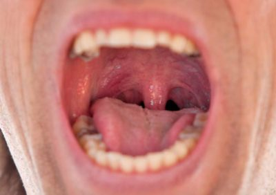 Illustration of The Back Of The Mouth Is Swollen And Sore In The Throat?