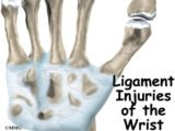 The Wrist Bone Has Been Sliding For 3 Months?