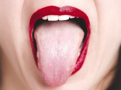 Illustration of Tongue Feels Itching, And How To Heal It?