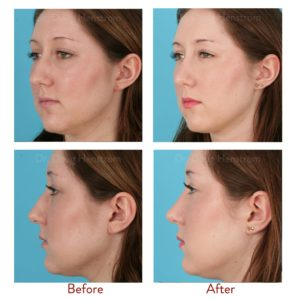 Illustration of Changes In Facial Shape After An Accident?