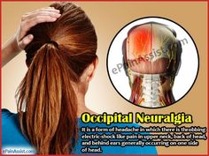 Illustration of Pain In The Back Of The Head Like Electric Shock?
