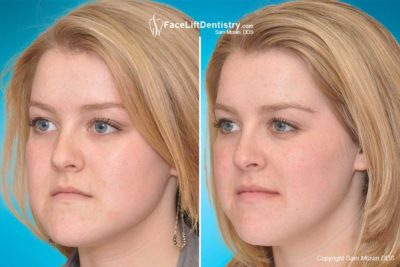 Illustration of How To Change Chin Shape?