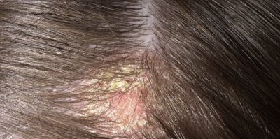 Illustration of Crust On The Head When Shampooing?