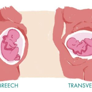 Illustration of Breech Baby Position And Genital Pain To Thighs During 8 Months Of Pregnancy?