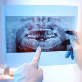 Illustration of X-rays And Tooth Extraction Using Insurance?