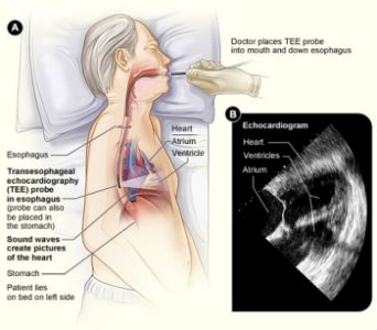 Illustration of The Results Obtained From Trans-esophageal Echocardiography Examination?