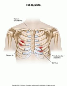 Illustration of Dislocated Ribs?