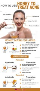 Illustration of Use Honey To Get Rid Of Acne?