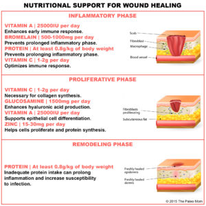 Illustration of Regarding Wound Care After Surgery?