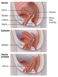Illustration of Installation Of Vaginal Support In Young Pregnant Women With Uterine Prolapse?