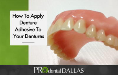 Illustration of Selection Of Good Dental Adhesives For Dentures Often Comes Off?