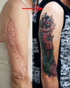 Illustration of Solution To Remove Burn Scars Such As Tattoos?