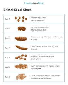 Illustration of Causes And Solutions To Overcome Difficult Stool And Consistency Of Hard Stool?