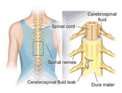 Illustration of Effects Of Spinal Fluid Retrieval?