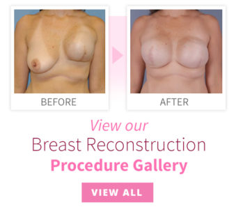 Illustration of Using Breast Tightening Devices In Women With Breast Tumors?