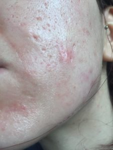 Illustration of How To Deal With Pockmarked Acne Scars On The Face?