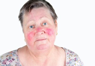 Illustration of Swollen Face, Redness, Pimples And Uneven Skin Tone After Using Face Cream?