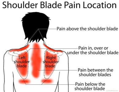 Illustration of Pain In The Upper Back And Below The Shoulder Blades?