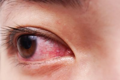 Illustration of Swollen, Red, Watery, And Painful Eyes After Wearing Contact Lenses?
