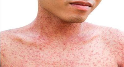 Illustration of Natural Way To Deal With Chicken Pox?
