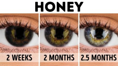 Illustration of Use Of Herbal Supplements To Reduce / Cure Eye Minus?