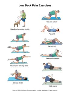 Illustration of Low Back Pain After Exercise?