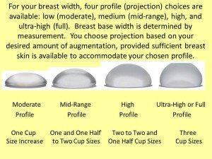 Illustration of Breast Implant Selection?