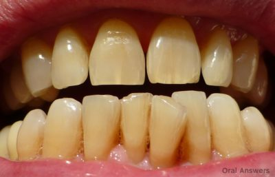 Illustration of Cracks Appear In The Teeth, Is It Okay To Use A Stirrup?