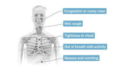 Illustration of Cough With Phlegm Accompanied By Dizziness And Facial Pain When Bending Over?