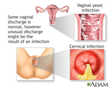 Illustration of Clear And Smelly Mucus From The Vagina Along With Itching On The Vaginal Lips?