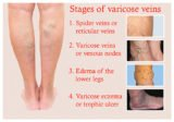 Dry, Numb Skin With A History Of Varicose Veins Surgery?