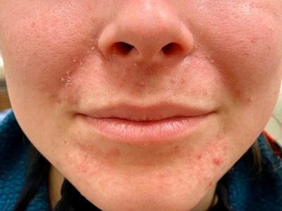 Illustration of Red Spots Under The Eyes, Chin, Nose And Cheeks After Using Skin Care?