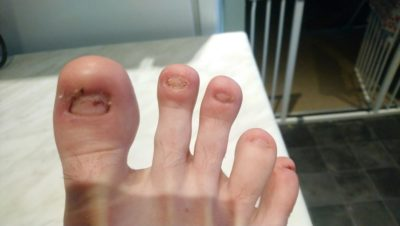 Illustration of The Toenail Of The Big Toe Was Pulled Out And Partially Stuck?