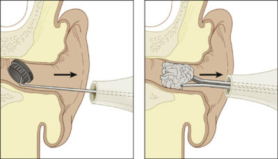 Illustration of How To Remove A Foreign Object From The Ear?
