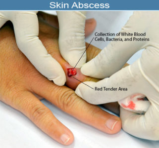 Illustration of Can The Abscess Heal On Its Own?