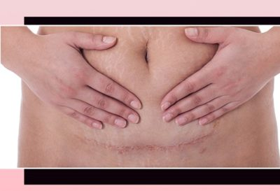 Illustration of Caesarean Section Scars Sore During Pregnancy?
