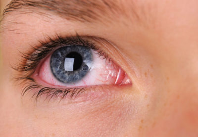 Illustration of The Cause Of Frequent Red Eyes?