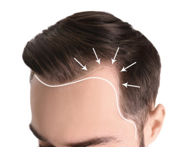 Illustration of Impact Of Laser Treatment For Hair Growth?