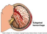 The Severity Of Bleeding In The Brain To Brain Surgery?