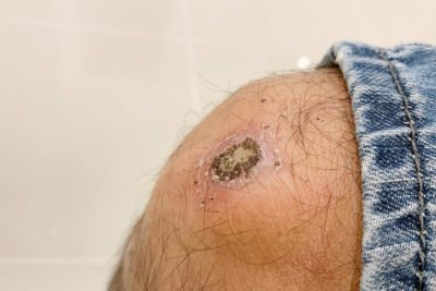 Illustration of The Cause Of The Scar Is A Yellowish Clear Discharge?